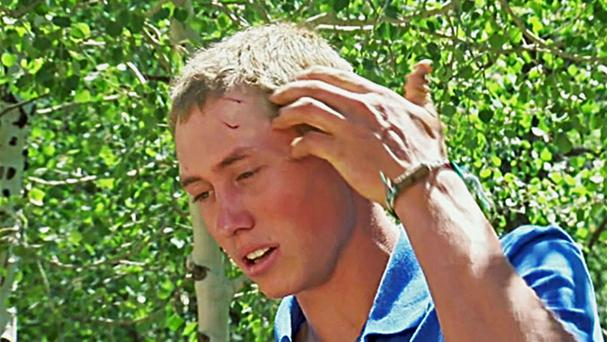 The Colorado camp staffer, who gave only his first name Dylan, shows his wounds after he was attacked by a bear (KMGH-TV via AP)