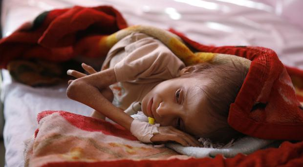 A malnourished child waits to receive treatment in a hospital in Yemen (AP)