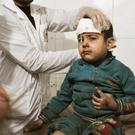 INNOCENT VICTIM: A wounded child receives treatment at a makeshift hospital in Ghouta last week