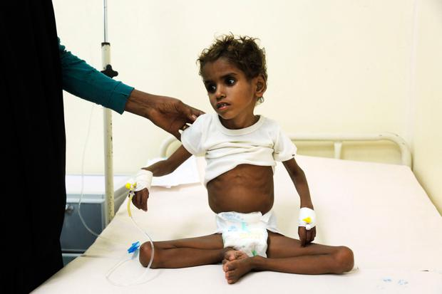 A malnourished Yemeni child receives treatment at a hospital in the port city of Hodeidah