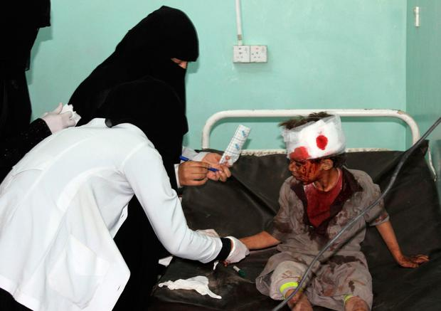 A Yemeni child receives treatment at a hospital after being wounded in a reported airstrike on the Iran-backed Huthi rebels' stronghold province of Saada. Photo: AFP/Getty Images