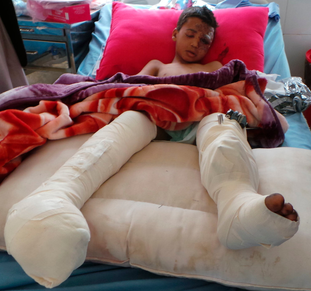 UAE bemoans 'ugly' side of war after Yemen bus attack