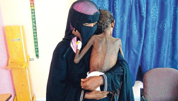 Aid: Yemeni mother Nadia Nahari holding her son Abdelrahman Manhash (5), who is suffering from severe malnutrition and weighing 5kg, at a treatment clinic in the western province of Hodeidah. Photo: AFP/GETTY IMAGES