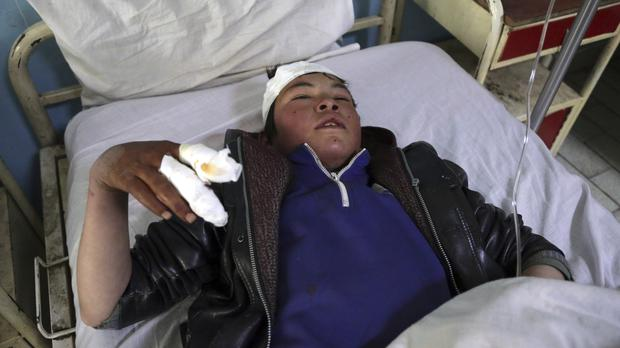 A boy injured in the incident recovers in hospital in Kabul, Afghanistan (Rahmat Gul/AP)