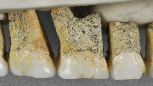The right upper teeth of the individual CCH6 of the newly discovered species Homo luzonensis (Callao Cave Archaeology Project via AP)