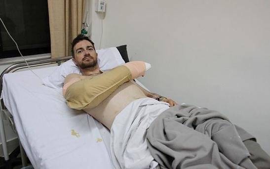 'We waited for it to run out of steam but instead it just engulfed us. I was thrown aside like a rag doll by the sheer force behind it.' – Survivor Paul Greenan in hospital in Kathmandu. Photo: Will Wintercross for 'The Telegraph'