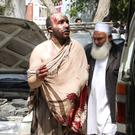 An injured man arrives at a hospital after two buses collided with a fuel tanker on a major highway in the eastern province of Ghazni in Afghanistan. Some 55 people have survived the accident. Photo: Reuters