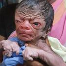 The baby was born with progeria Photo: India Today
