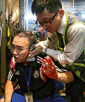 Bleeding: Local councillor Andrew Chiu receives medical treatment after part of his ear was bitten off. Photo: AP