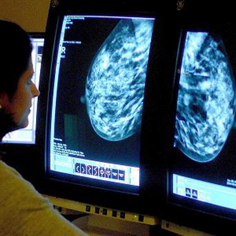 Researchers say a smaller percentage of women survive breast cancer in the UK than in Australia, Canada, Norway and Sweden