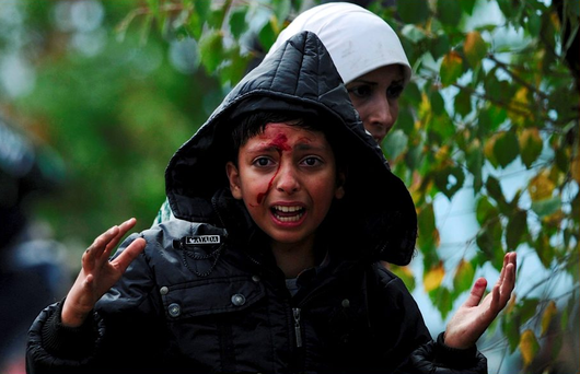 A bloodied girl cries after crossing Greece's border into Macedonia near Gevgelija