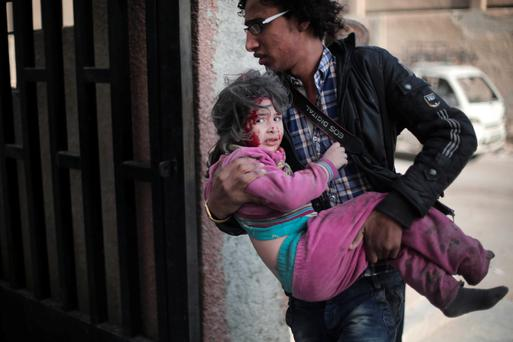 A Syrian photographer carries an injured girl following reported air strikes by regime forces on the town of al-Nashabiyah in the eastern Ghouta region, a rebel stronghold east of the capital Damascus. Photo: AFP/Getty Images