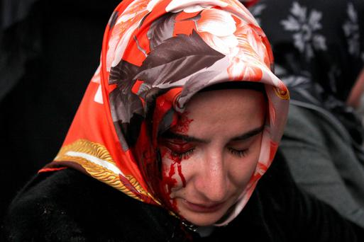 A woman bleeds from an injury after riot police used tear gas and water cannons to disperse people gathered in support, outside the headquarters of Zaman newspaper in Istanbul