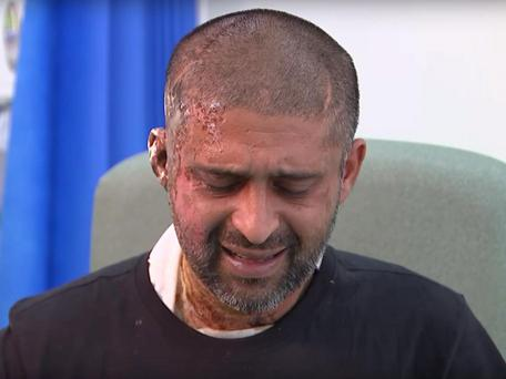 Jameel Muhktar, 37, speaking to Channel 4 News in hospital following an acid attack on 21 June Photo: Channel 4 News/YouTube