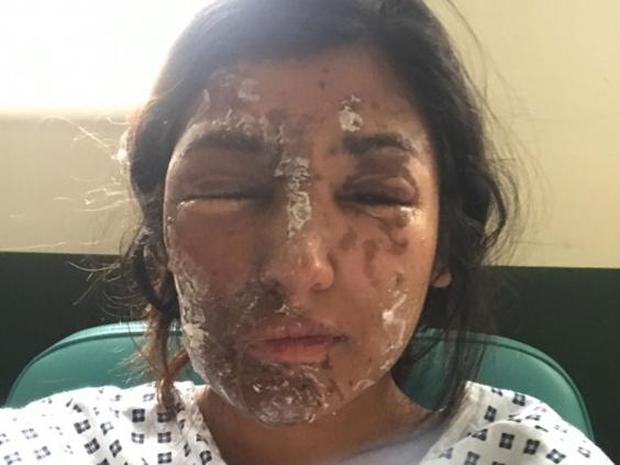 Resham Khan in hospital following an acid attack on 21 June (Gofundme)