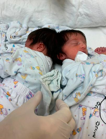 The twins before they were separated. Photo: Soroka Medical Center/PA