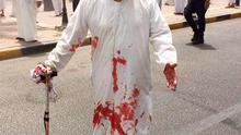 A blood-soaked man on the street following the deadly blast at a Shiite mosque in Kuwait