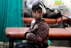 An injured boy waits inside a field hospital after what activists said were airstrikes and shelling by forces loyal to Syria's President Bashar al-Assad in the Douma neighborhood of Damascus.