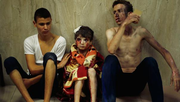 Palestinians, who medics said were wounded in Israeli shelling, sit at a hospital in Gaza City yesterday.