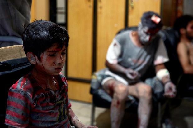 A wounded boy awaits treatment at a make-shift hospital in the rebel-held area of Douma, east of the Syrian capital Damascus, following reported air strikes by regime forces.