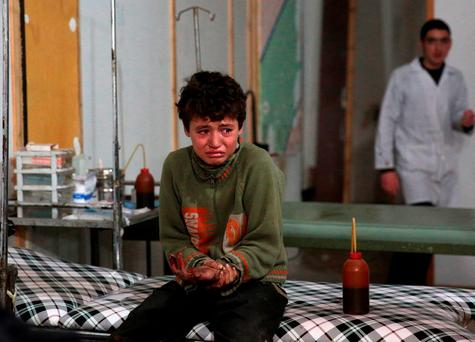 A wounded Syrian boy cries at a makeshift hospital following a reported air strike by government forces in the rebel-held area of Douma, east of the capital Damascus