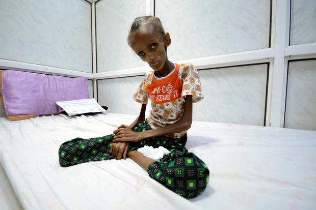 Saida Ahmad Baghili (18) who is affected by severe acute malnutrition, sits on a bed at the al-Thawra hospital in the Red Sea port city of Houdieda, Yemen. Photo: REUTERS/Abduljabbar Zeyad/File Photo