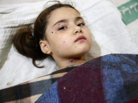 An injured girl rests in a field hospital after an air strike on a nursery in the rebel-held besieged city of Harasta, in the eastern Damascus suburb of Ghouta, Syria, 6 November, 2016. Reuters