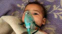 A Syrian child receives treatment following a suspected toxic gas attack in Khan Sheikhun, a rebel-held town in the northwestern Syrian Idlib province, on April 4, 2017