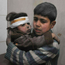 Two Syrian children wounded during airstrikes Photo: AP