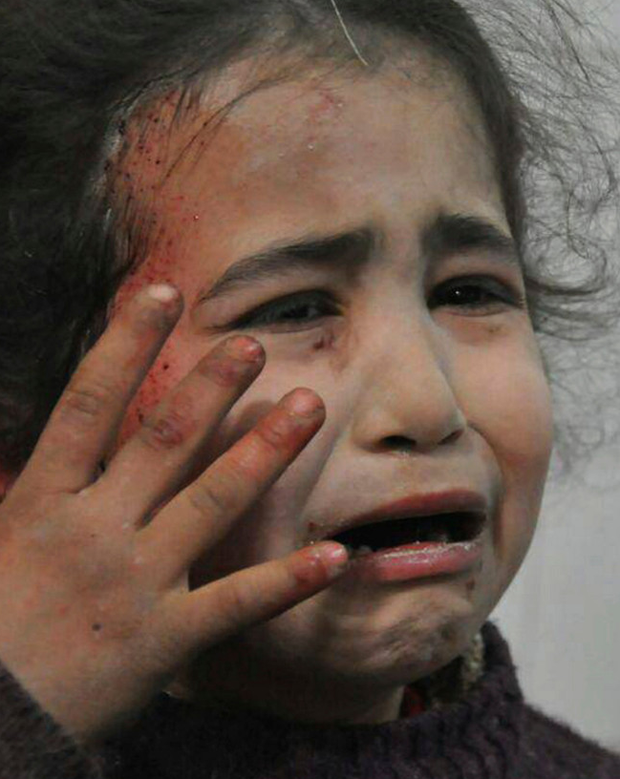 A young Syrian girl wounded during airstrikes Photo: AP