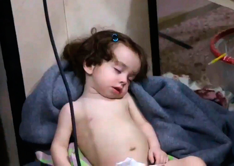 A child rests in the medical clinic after receiving treatment for the chemical attack Photo: Getty