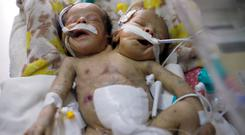 Newly born conjoined twins Abdelkhaleq and Abdelkarim lie in an incubator in intensive care at al-Thawra hospital in Sanaa. Photo: Reuters
